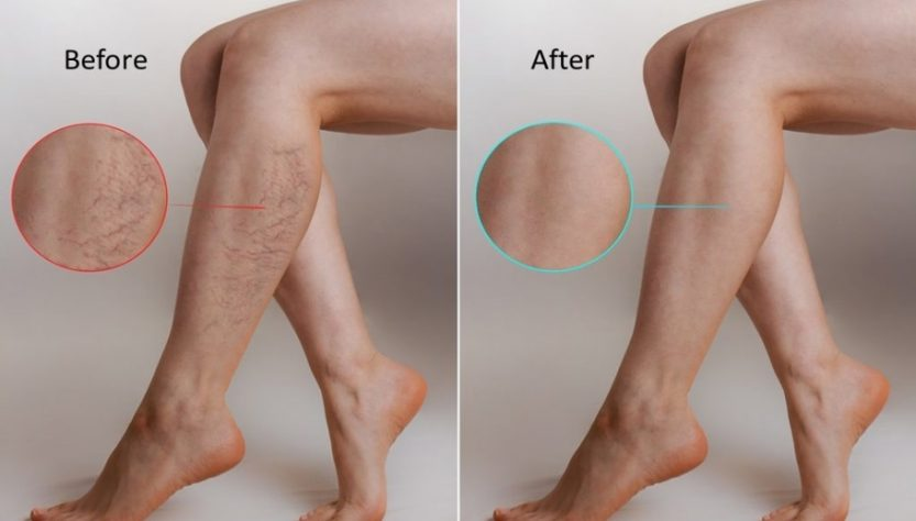 Spider Veins Reasons